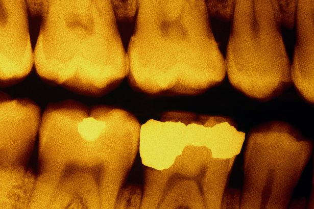 Dental-x-ray-showing-fillings
