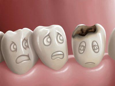 Dental-fillings-Northridge