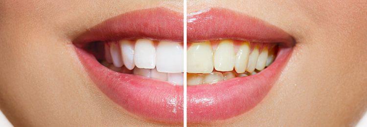 teethwhiteninghuntersvillenc
