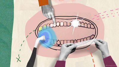 teeth_2_custom-70dd1f5c8576880f1b2df225634cad12038d3eb3-s800-c85