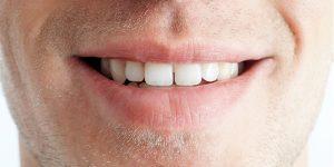 180112-teeth-mn-1310_488571b761c6eb3a428309540293827b.focal-600x300