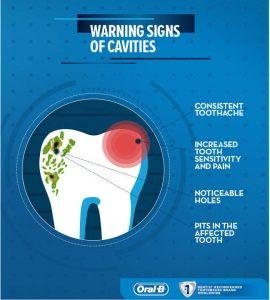 Warning-Signs-of-Cavities